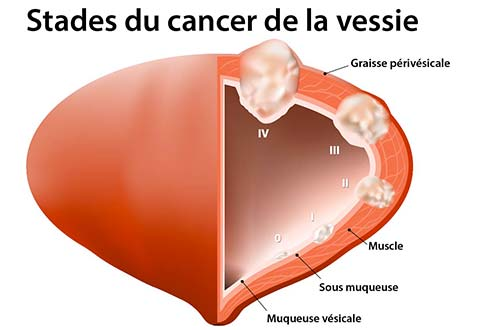 Tumeurs urothéliales de la vessie