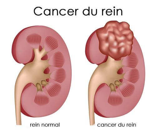Tumeurs bénignes et cancéreuses du rein
