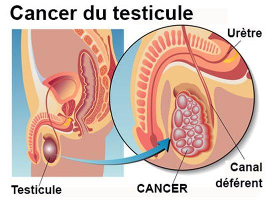 Tumeurs bénignes et cancéreuses du testicules